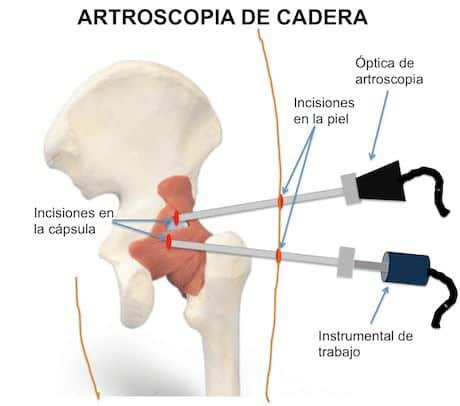 artroscopia_de_cadera