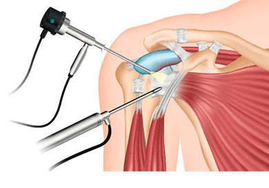 artroscopia-de-hombro